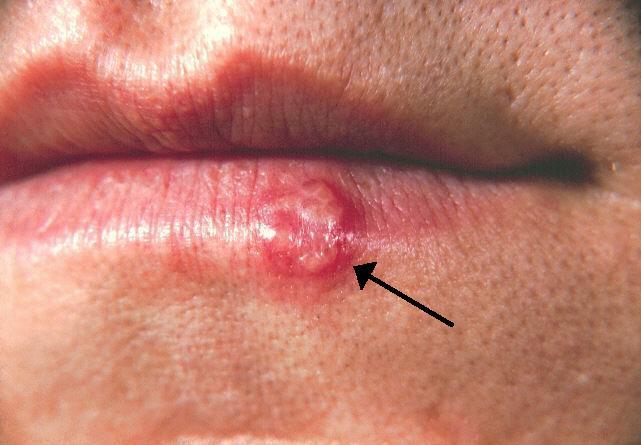 Lippenherpes (Herpes Labialis) an der Unterlippe